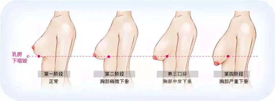 上海整形医院乳房下垂矫正怎么做