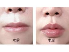 玻尿酸丰唇上海哪家医院效果好