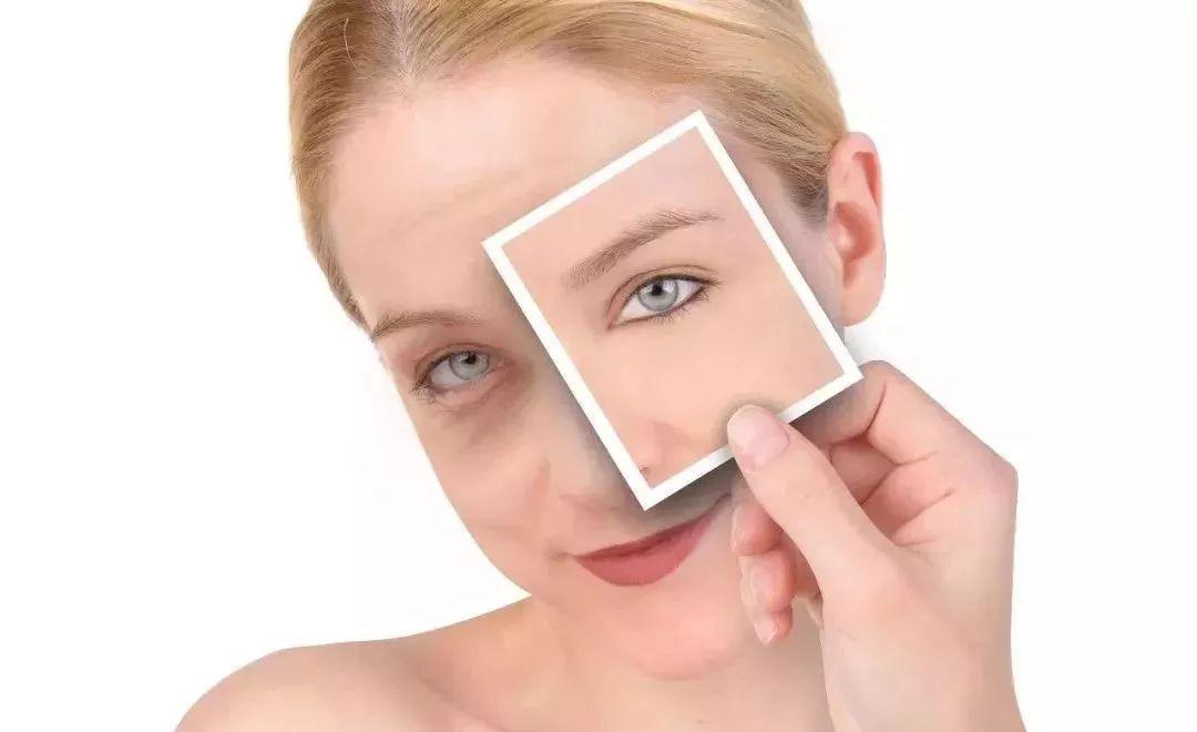 眼袋暴露您的年龄-美莱医疗美容告诉您
