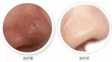 上海美莱小气泡—皮肤蜕变的选择