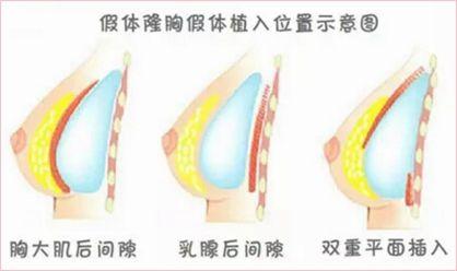 上海假体隆胸手术效果自然吗