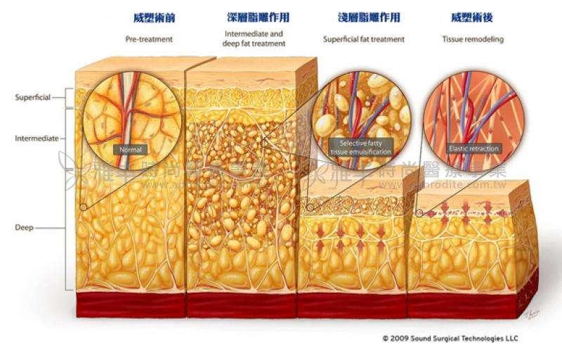 上海做腹部抽脂手术会影响怀孕吗