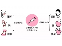 上海美莱的自体脂肪填充理想年龄是多大