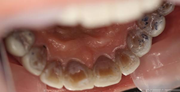 上海做四环素牙齿美白的维持时间是多久