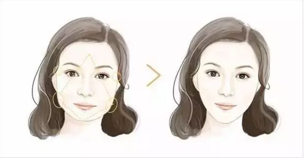 上海打瘦脸针会影响我们正常吃东西吗
