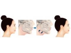 上海做下颌角磨骨术的适应人群有哪些