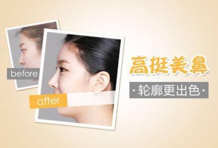 上海整形医院美莱做膨体隆鼻多少钱