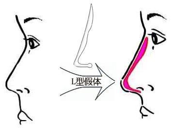 美莱介绍:影响做隆鼻成功失败的因素有哪些