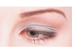 美莱眼部整形介绍——上眼睑下垂形成的真实原因