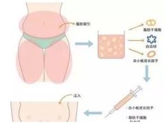 美莱做自体脂肪隆胸,一般都抽哪些部位