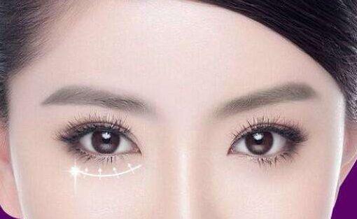 上海激光去眼袋的效果好不好,安全吗