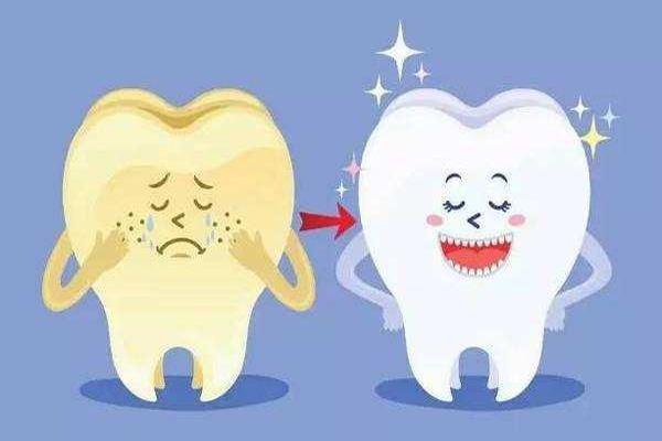 牙齿美白一般多少钱?牙齿美白的方法影响价格