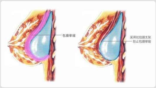 隆胸失败修复怎么做