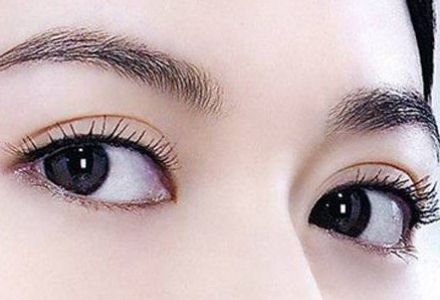 上海做韩式双眼皮需要多久恢复