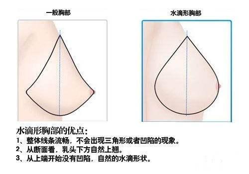 上海整形医院做假体隆胸怎么做