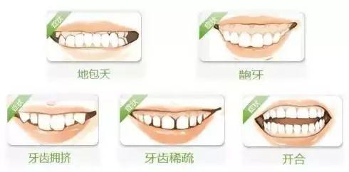 美莱牙齿矫正:牙齿矫正出现反弹,原因你知道几个