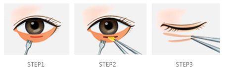 美莱做眼袋去除手术的适应症有哪些
