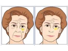 祛眼袋失败修复,美莱有哪些修复方法