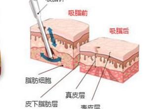 上海抽脂去哪家医院好