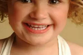 儿童牙齿地包天怎么办