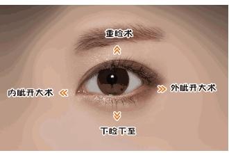上海双眼皮修复去哪里好