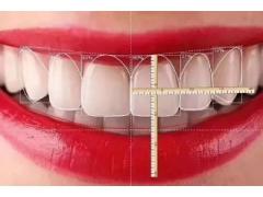 牙齿贴面有什么特点