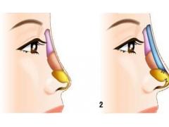 上海做假体隆鼻整形术后