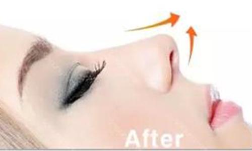 做自体软骨隆鼻整形手术需要注意什么