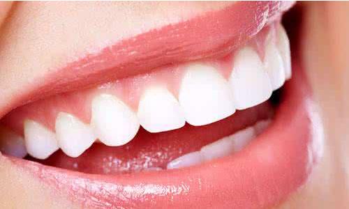 冷光美白牙齿一般做一次要多少钱