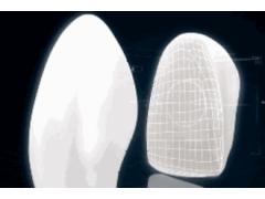 什么是牙贴面