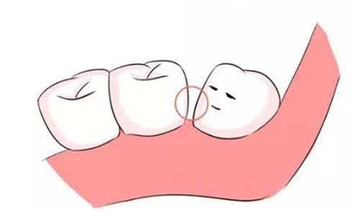 牙齿矫正一般需要多长时间才能变整齐