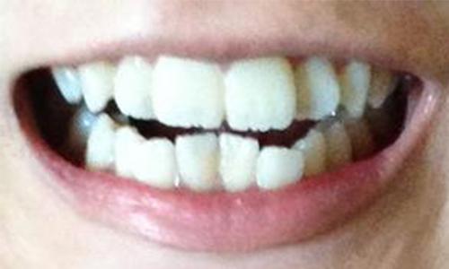 前牙有点突出应该怎么矫正啊