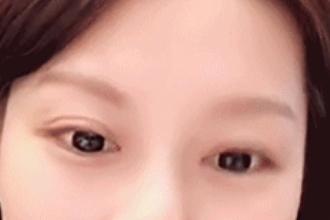 怎样选择适合自己的双眼皮