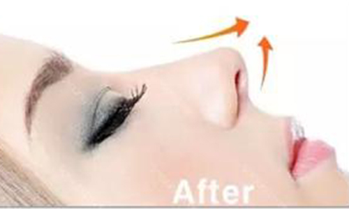 做隆鼻失败修复手术需要多少钱