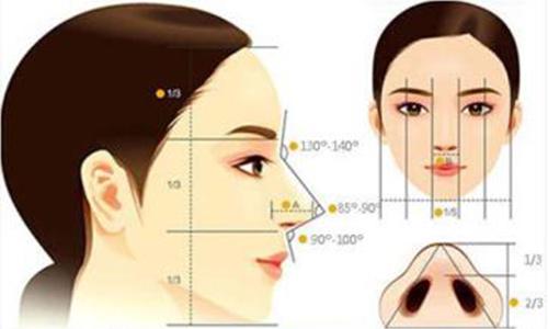 做假体隆鼻整形手术效果怎么样