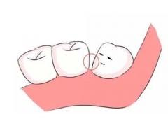 牙齿不齐的危害有哪些