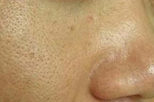 脸上毛孔特别粗大到底怎么才能修复啊