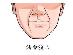 上海注射玻尿酸去除法令纹效果好不好