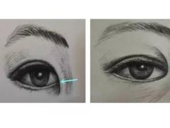 做开眼角整形手术对眼睛有没有什么危害