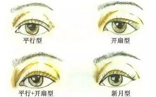 宽双眼皮怎么修复