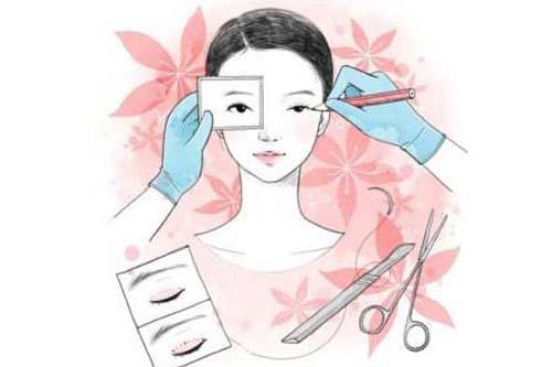 割双眼皮加开眼角手术一起做需要多少钱啊