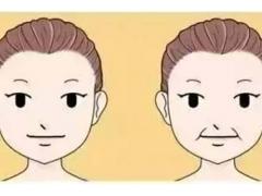 注射玻尿酸去除嘴角纹价格要多少钱