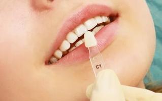 正畸和牙贴面关闭牙缝哪个好