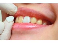 上海哪个医院做牙齿树脂贴面好