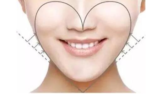 注射瘦脸针后瘦脸效果可以保持多久