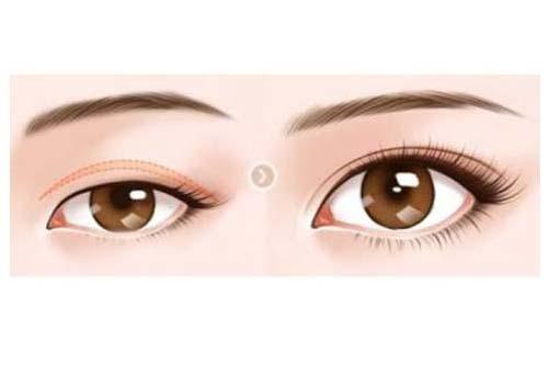 眼睑下垂矫正手术需要多少钱