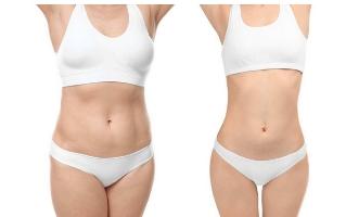 腹部吸脂的优点,美莱吸脂、塑形兼顾