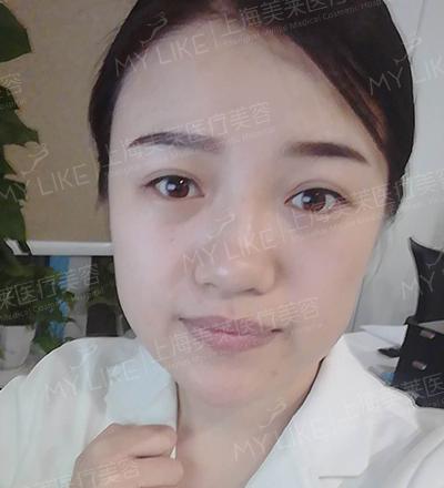 颖儿+卢建+美莱韩式小翘鼻