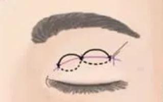 无痕双眼皮是永久的吗?和埋线有啥区别