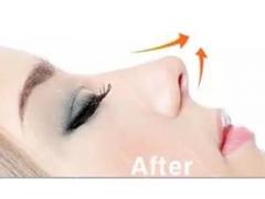 做鼻翼缩小手术有几种方